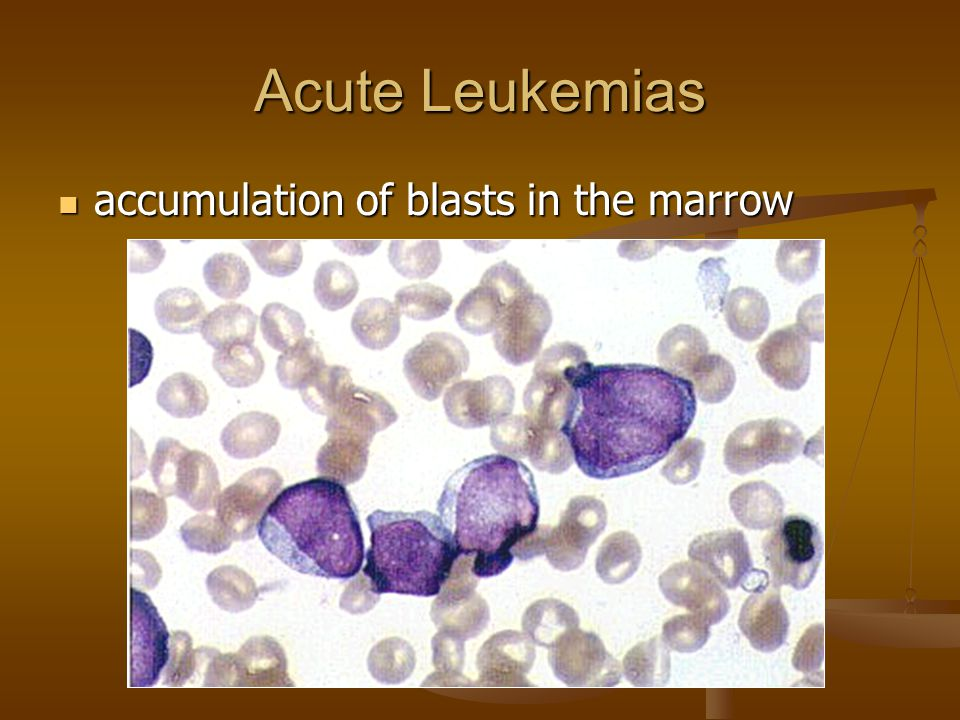 Acute Leukemias accumulation of blasts in the marrow