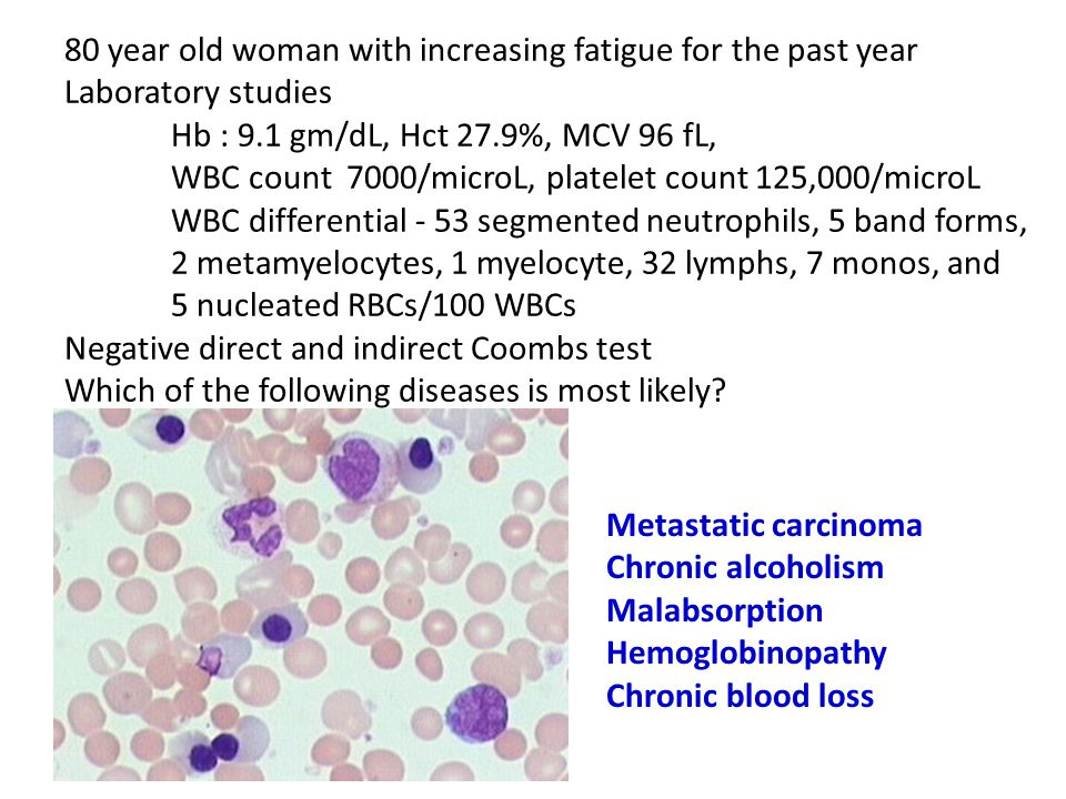 80 year old woman with increasing fatigue for the past year Laboratory studies Hb : 9.1 gm/dL, Hct 27.9%, MCV 96 fL, WBC count 7000/microL, platelet count 125,000/microL WBC differential - 53 segmented neutrophils, 5 band forms, 2 metamyelocytes, 1 myelocyte, 32 lymphs, 7 monos, and 5 nucleated RBCs/100 WBCs Negative direct and indirect Coombs test Which of the following diseases is most likely