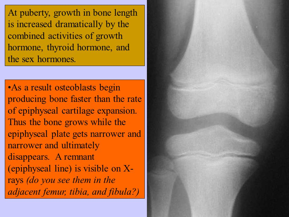 At puberty, growth in bone length is increased dramatically by the combined activities of growth hormone, thyroid hormone, and the sex hormones.