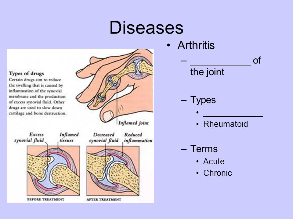 Diseases Arthritis ___________ of the joint Types Terms _____________