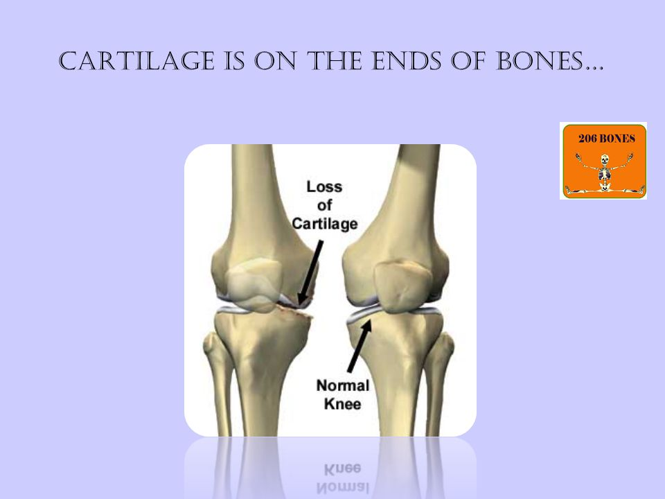 Cartilage is on the ends of bones…