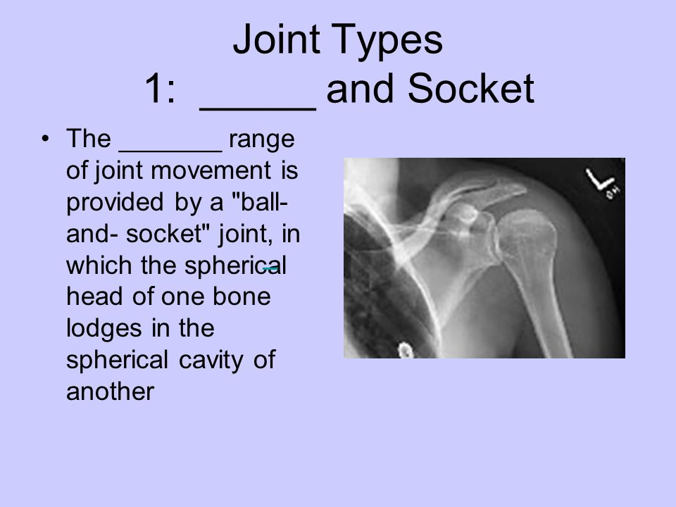 Joint Types 1: _____ and Socket