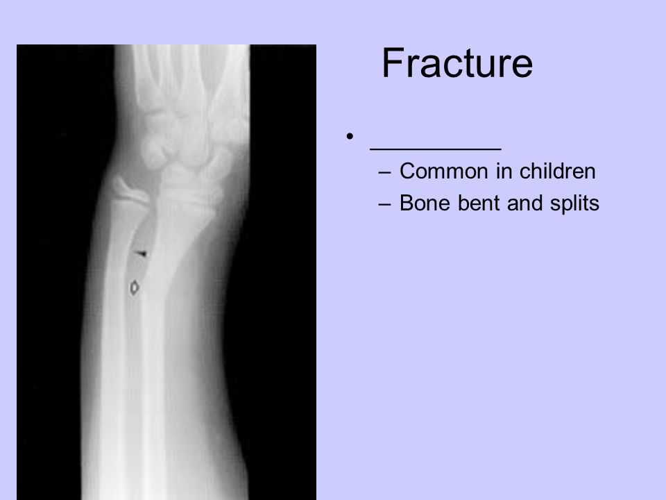 Fracture _________ Common in children Bone bent and splits