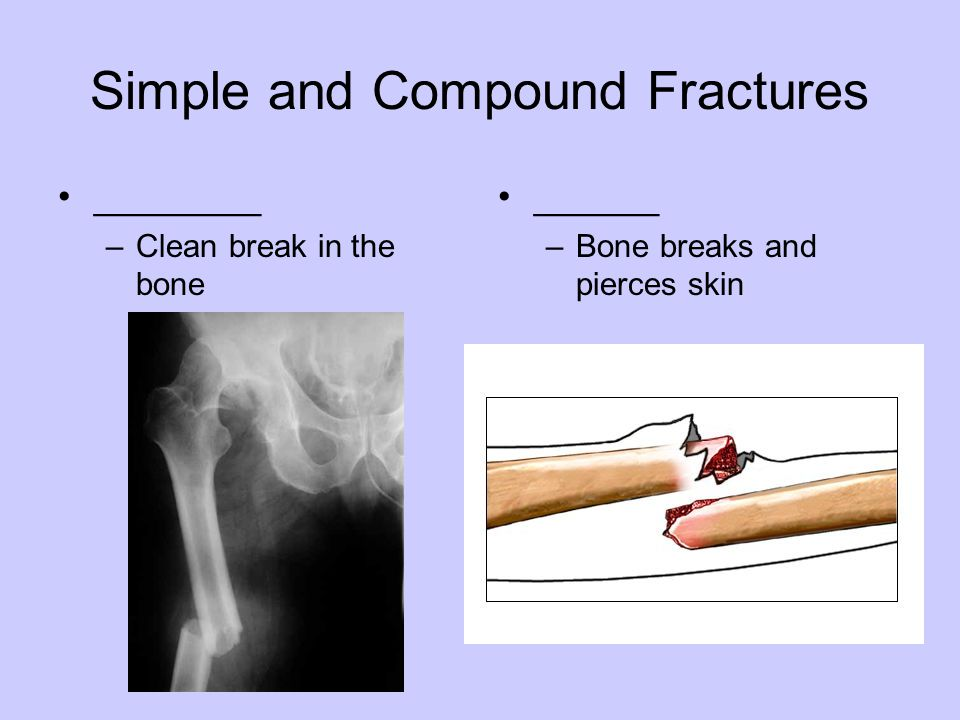Simple and Compound Fractures