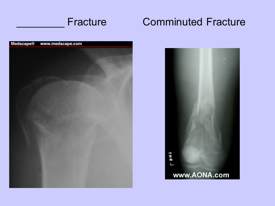 ________ Fracture Comminuted Fracture