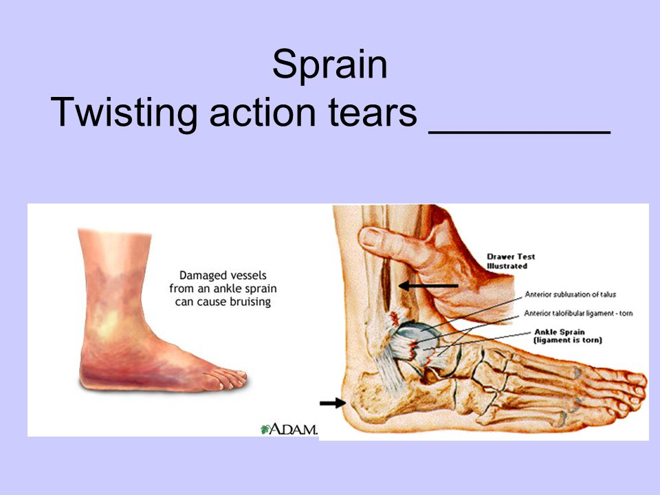 Sprain Twisting action tears ________