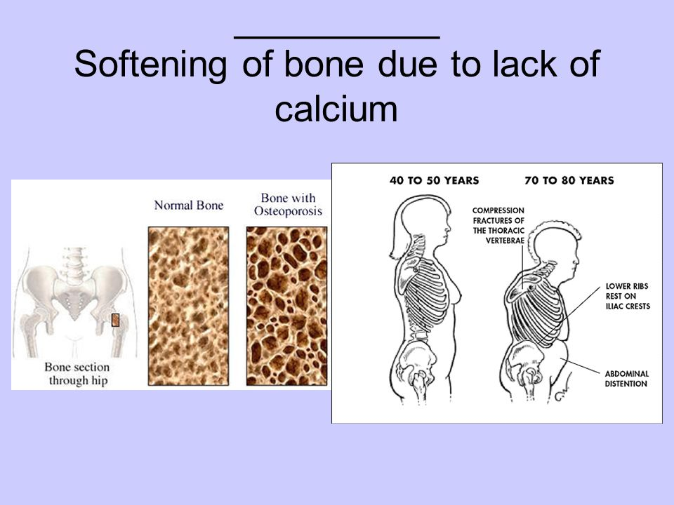 __________ Softening of bone due to lack of calcium