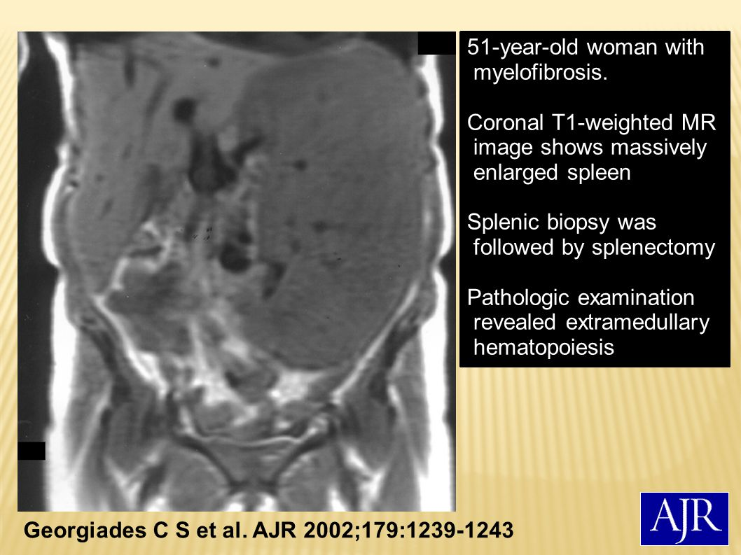 51-year-old woman with myelofibrosis.