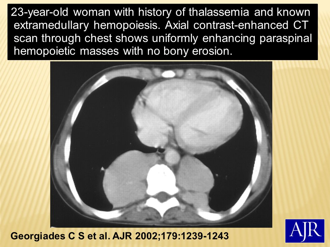 23-year-old woman with history of thalassemia and known extramedullary hemopoiesis. Axial contrast-enhanced CT scan through chest shows uniformly enhancing paraspinal hemopoietic masses with no bony erosion.