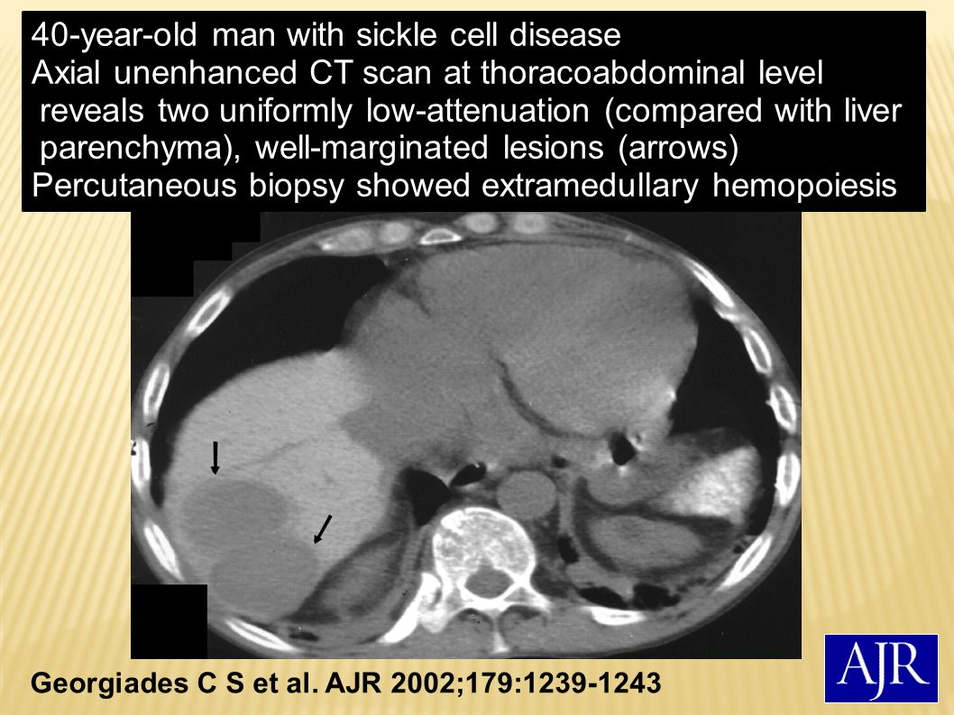 40-year-old man with sickle cell disease
