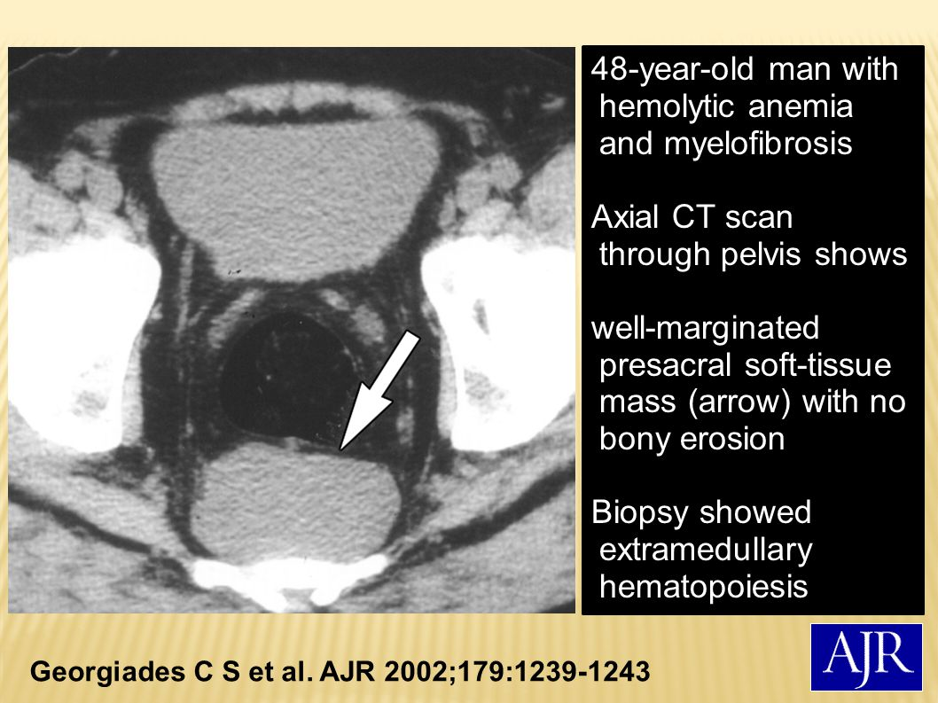 48-year-old man with hemolytic anemia and myelofibrosis