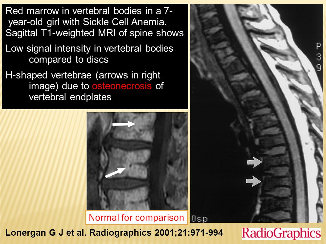 Sagittal T1-weighted MRI of spine shows