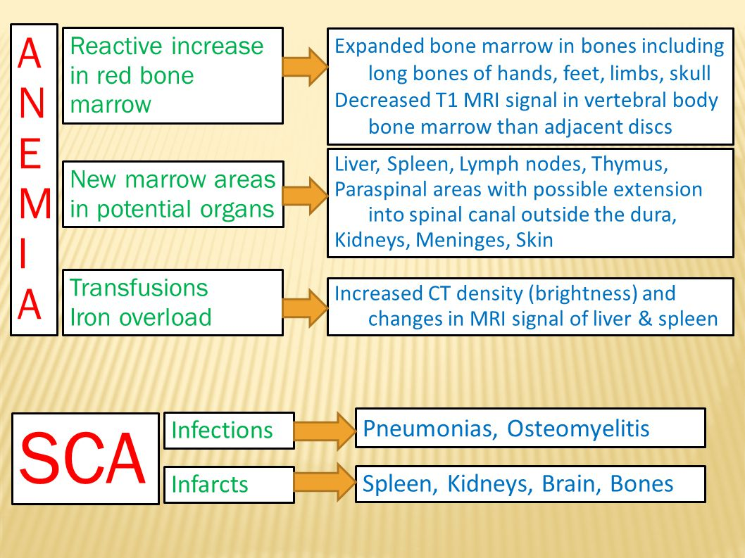 SCA ANEMIA Reactive increase in red bone marrow New marrow areas