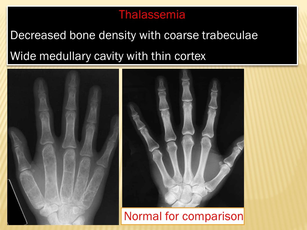 Thalassemia Decreased bone density with coarse trabeculae. Wide medullary cavity with thin cortex.