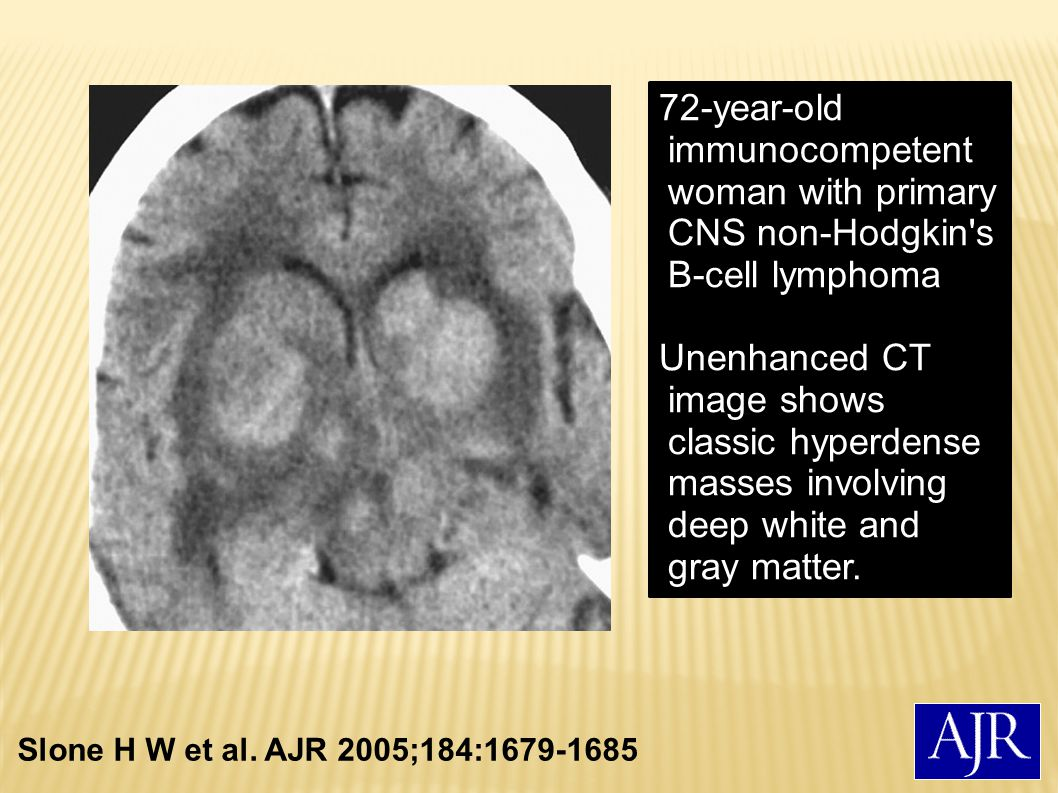 72-year-old immunocompetent woman with primary CNS non-Hodgkin s B-cell lymphoma
