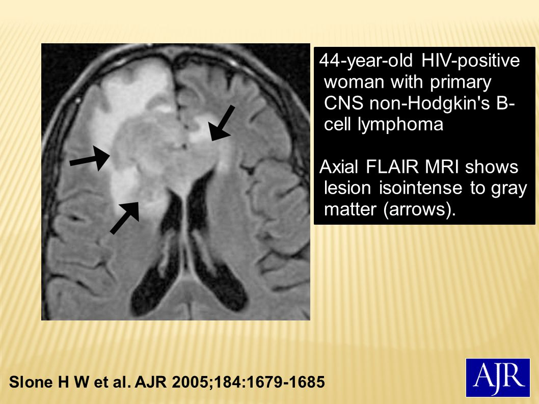 Axial FLAIR MRI shows lesion isointense to gray matter (arrows).