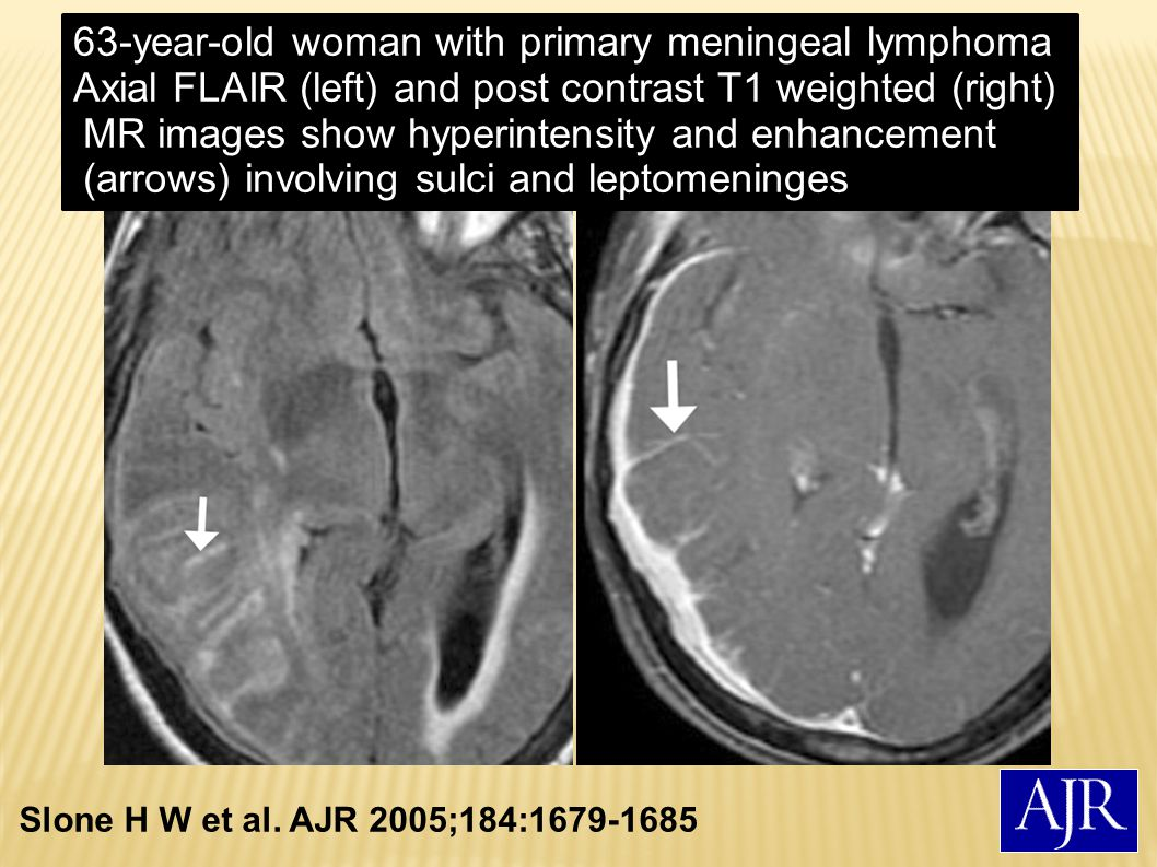 63-year-old woman with primary meningeal lymphoma