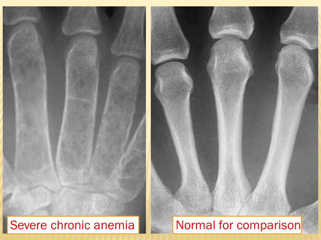 Severe chronic anemia Normal for comparison