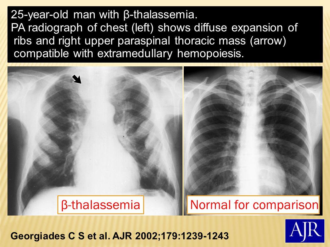 β-thalassemia Normal for comparison