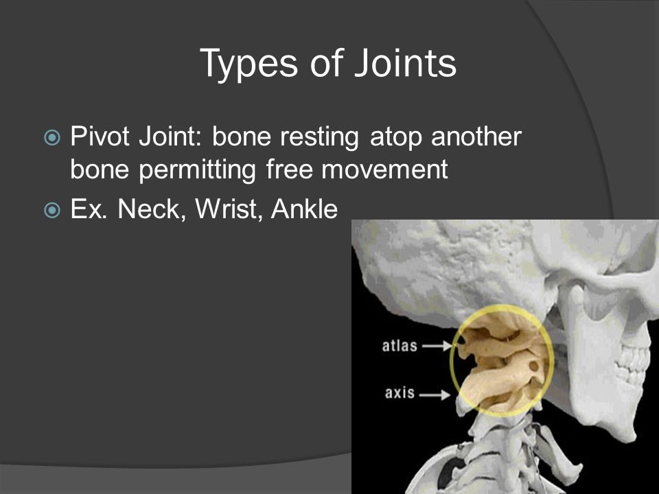 Types of Joints Pivot Joint: bone resting atop another bone permitting free movement.