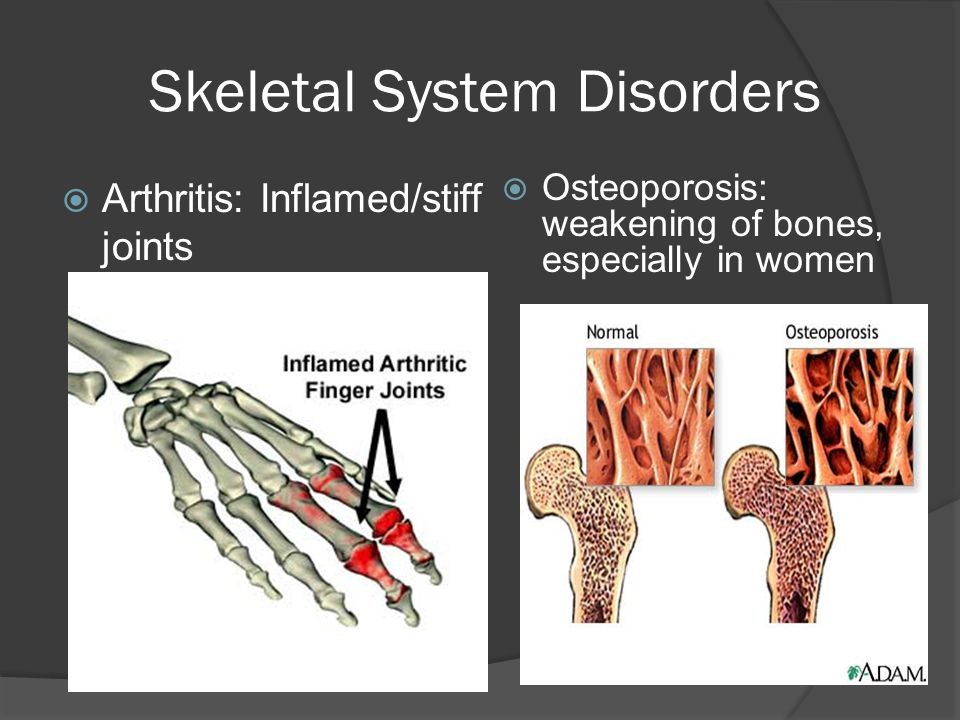 Genetic Skeletal Disorders