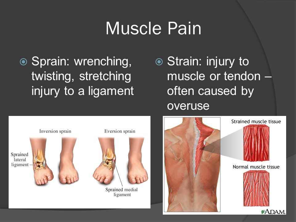 Muscle Pain Sprain: wrenching, twisting, stretching injury to a ligament.