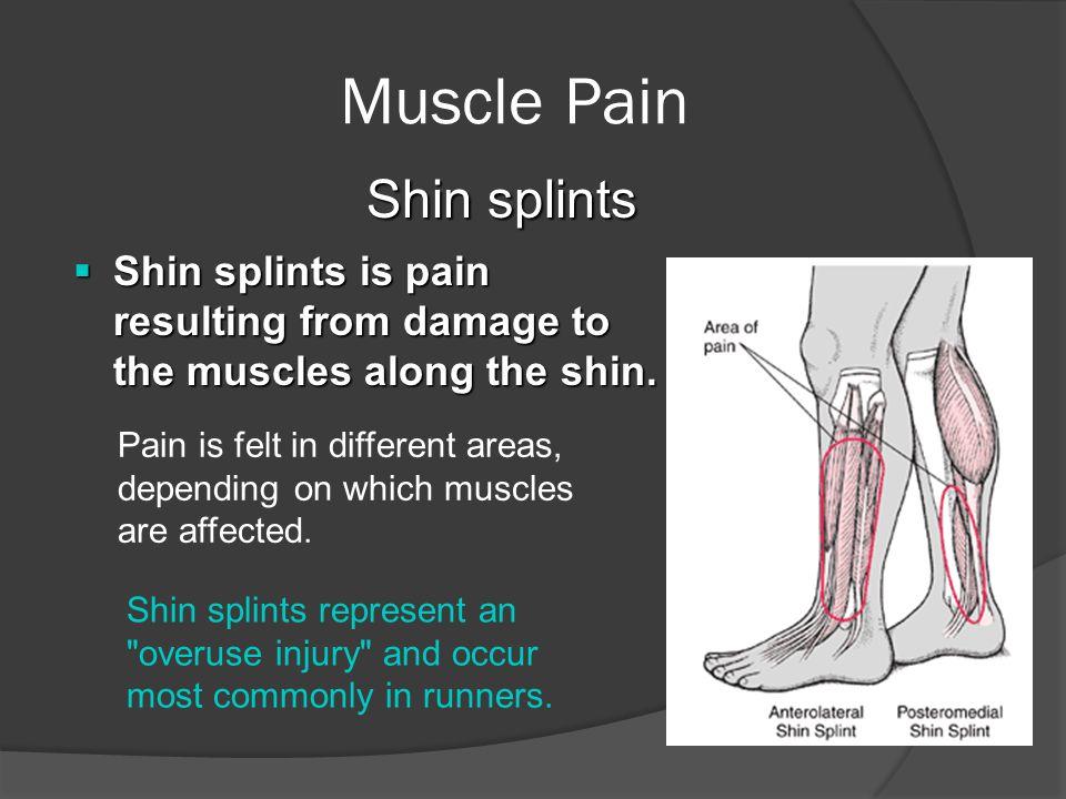 Muscle Pain Shin splints