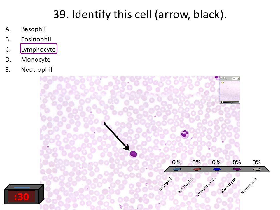 39. Identify this cell (arrow, black).