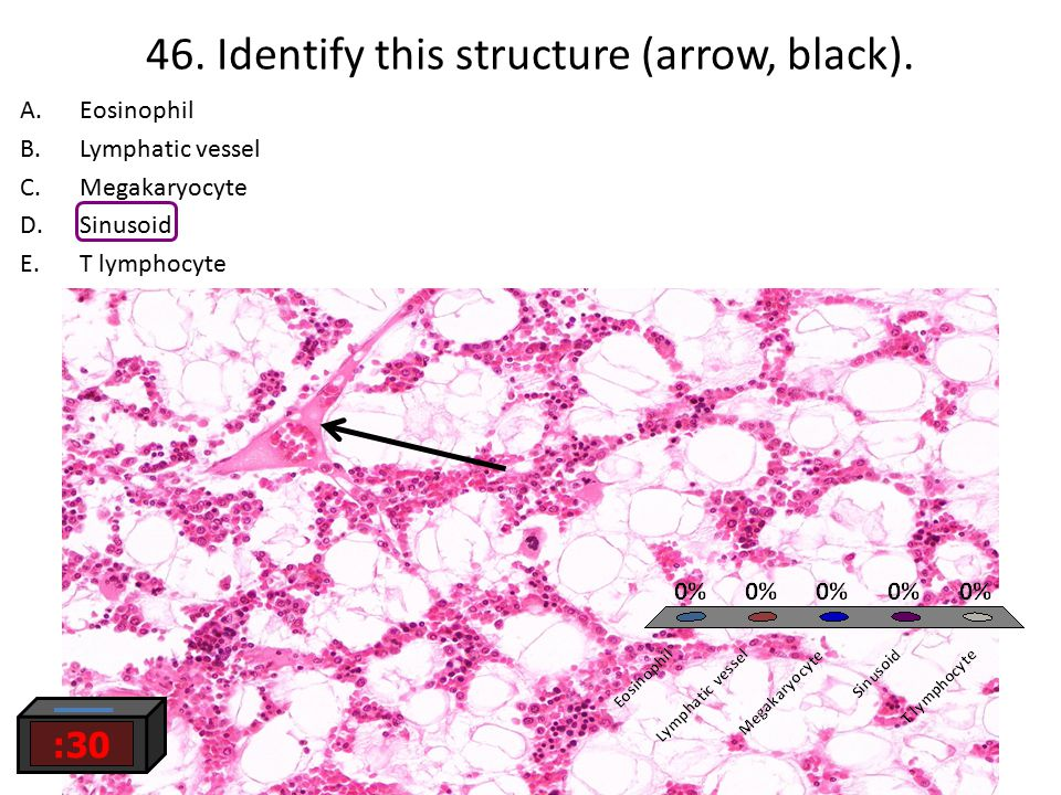 46. Identify this structure (arrow, black).