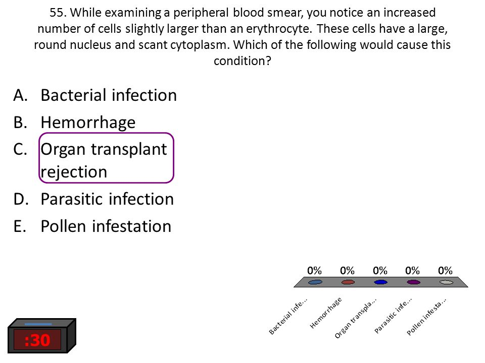 Organ transplant rejection Parasitic infection Pollen infestation