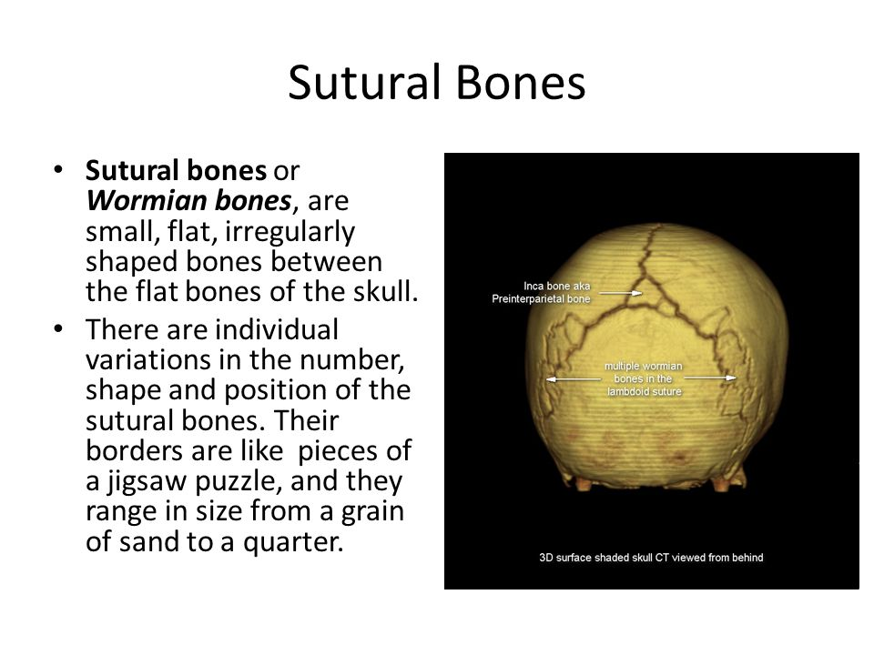 Sutural Bones Sutural bones or Wormian bones, are small, flat, irregularly shaped bones between the flat bones of the skull.