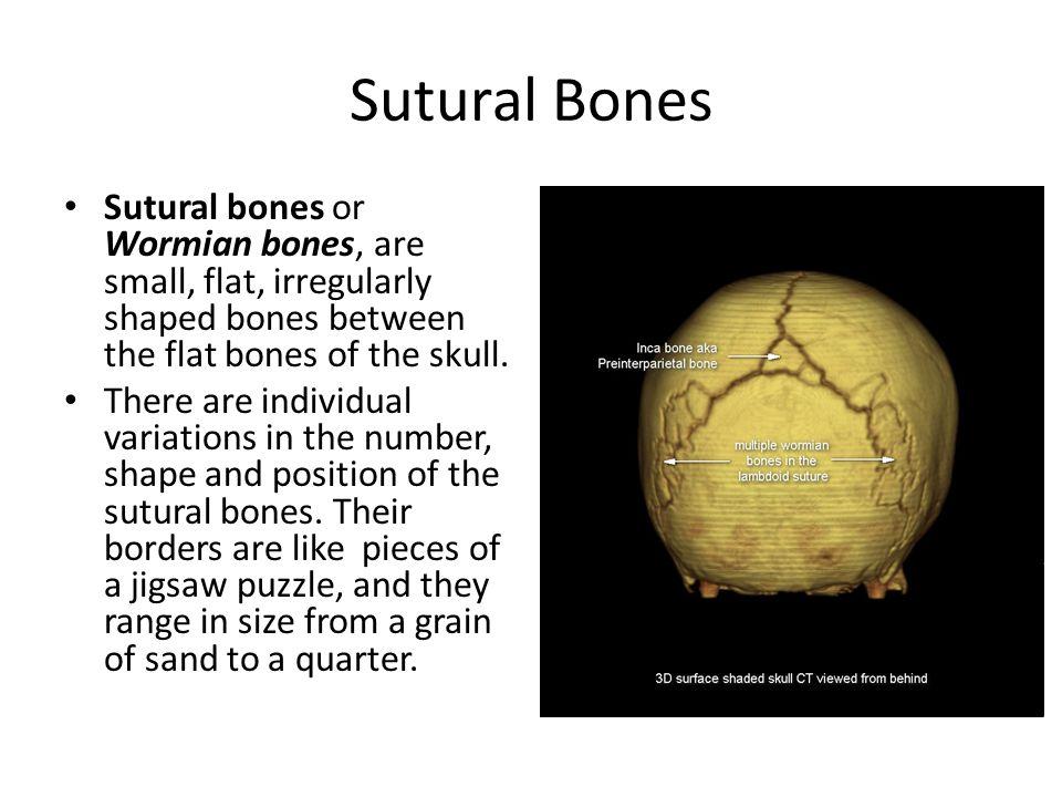 Sutural Bones Sutural bones or Wormian bones, are small, flat, irregularly shaped bones between the flat bones of the skull.