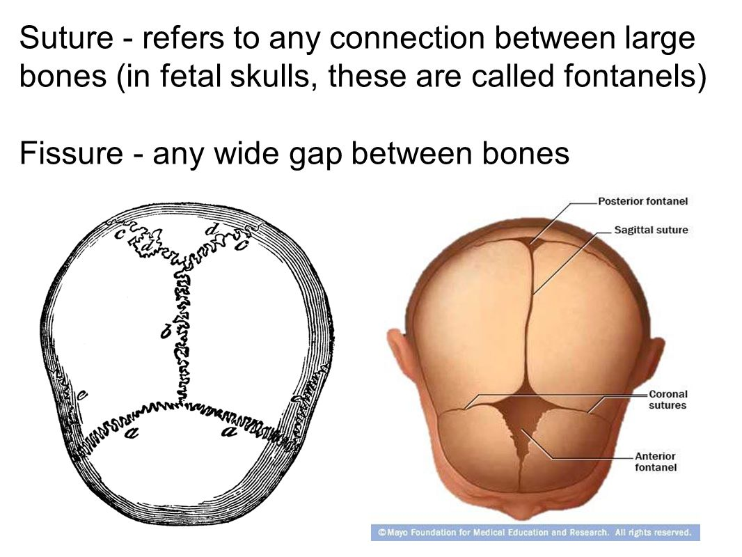 Suture - refers to any connection between large bones (in fetal skulls, these are called fontanels)