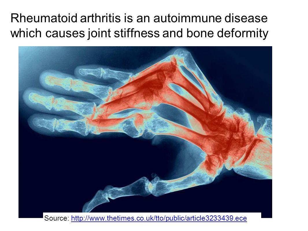 Rheumatoid arthritis is an autoimmune disease which causes joint stiffness and bone deformity