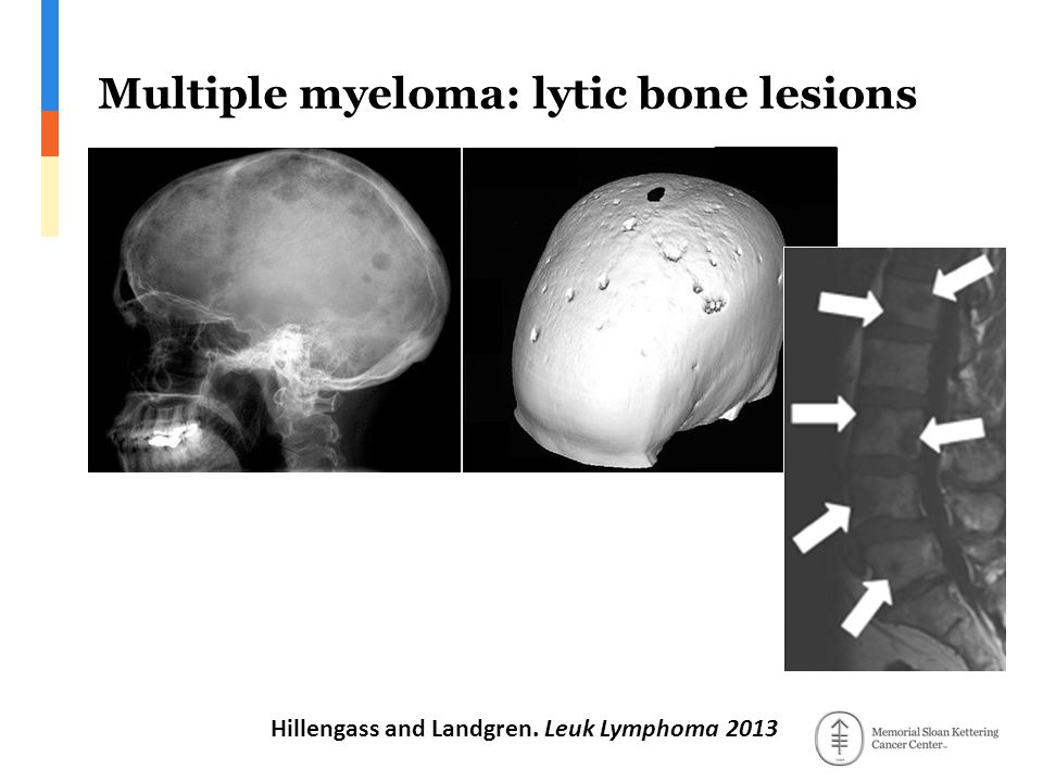 Multiple myeloma: lytic bone lesions