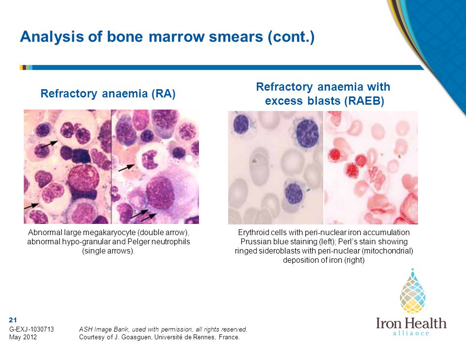 Analysis of bone marrow smears (cont.)