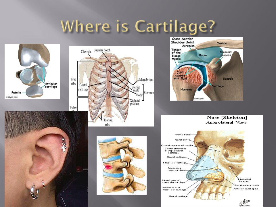 Where is Cartilage