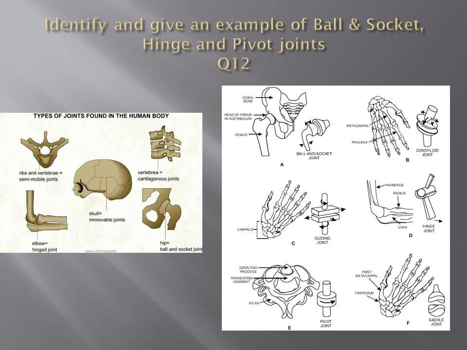 Identify and give an example of Ball & Socket, Hinge and Pivot joints Q12