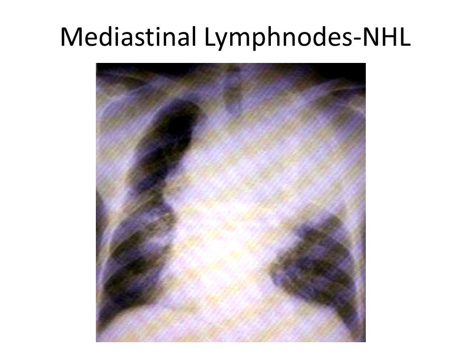 Mediastinal Lymphnodes-NHL