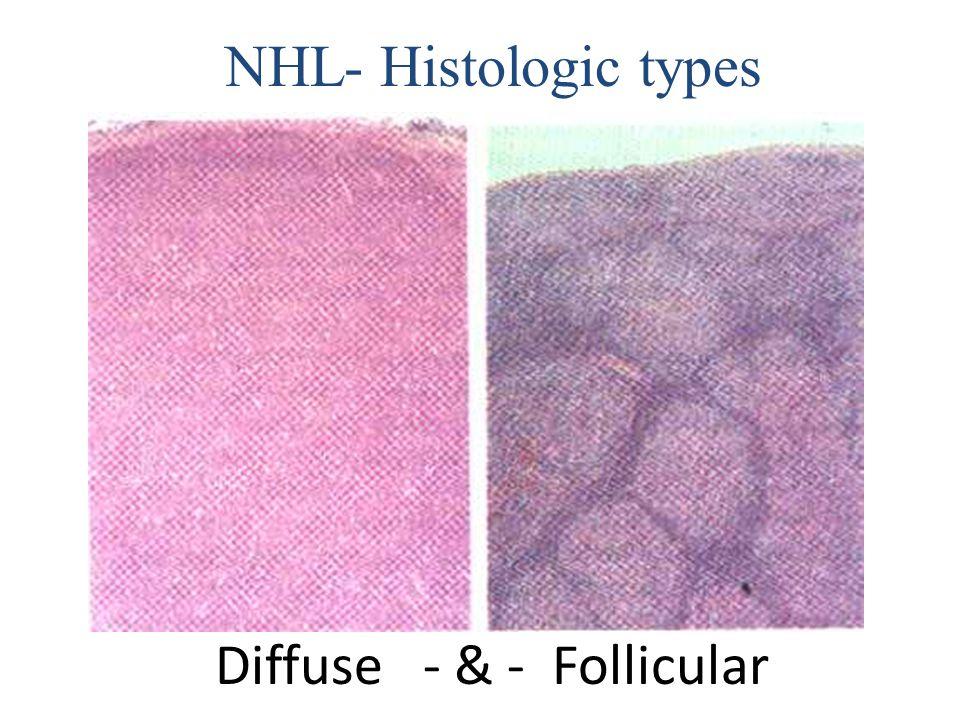 Diffuse - & - Follicular