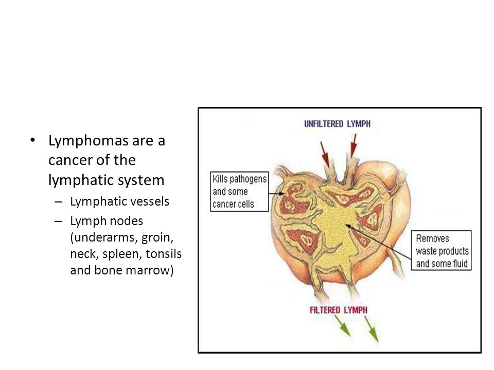 Lymphomas are a cancer of the lymphatic system