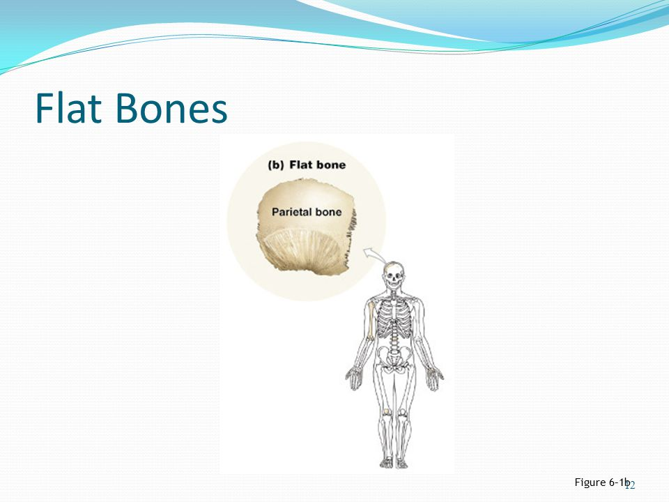 Flat Bones Figure 6–1b