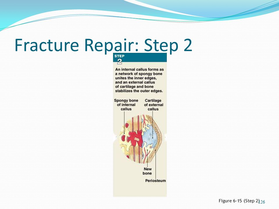 Fracture Repair: Step 2 Figure 6–15 (Step 2)
