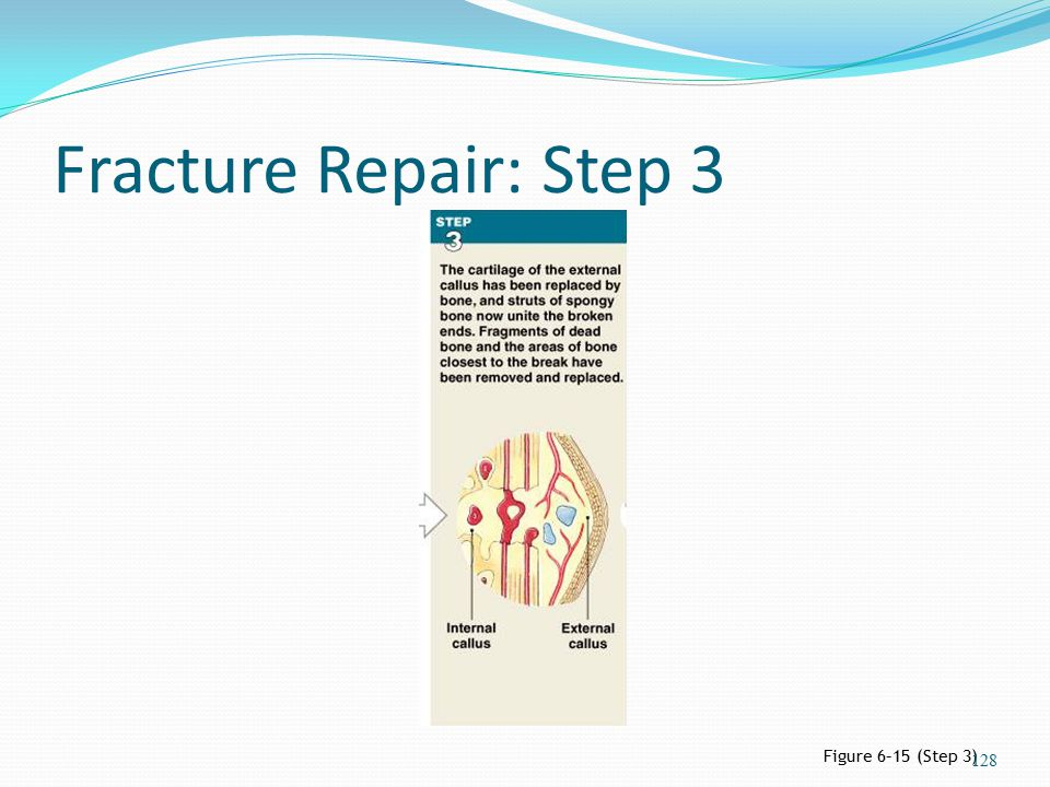 Fracture Repair: Step 3 Figure 6–15 (Step 3)