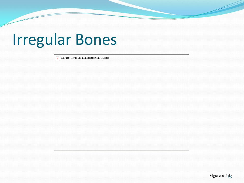 Irregular Bones Figure 6–1d