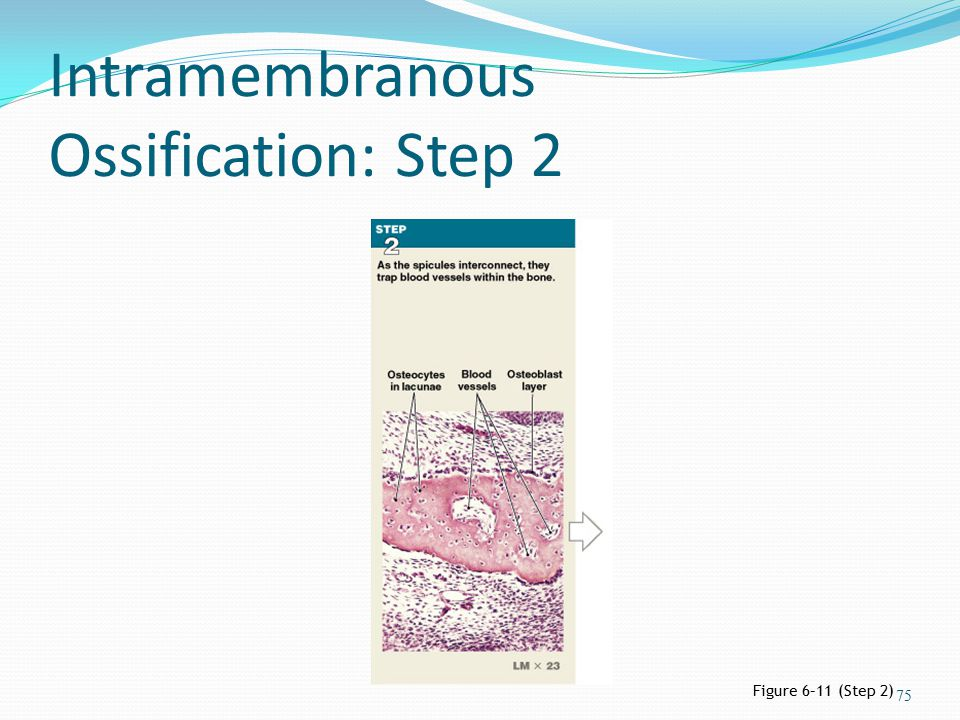Intramembranous Ossification: Step 2