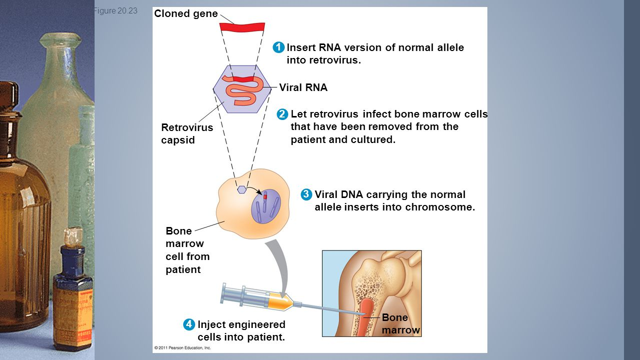 Insert RNA version of normal allele into retrovirus.