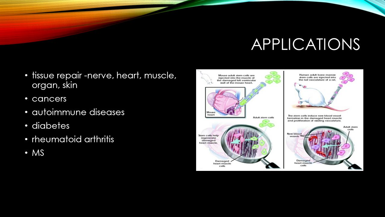 Applications tissue repair -nerve, heart, muscle, organ, skin cancers