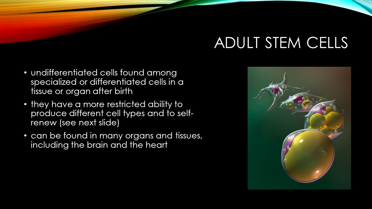 Adult Stem cells undifferentiated cells found among specialized or differentiated cells in a tissue or organ after birth.
