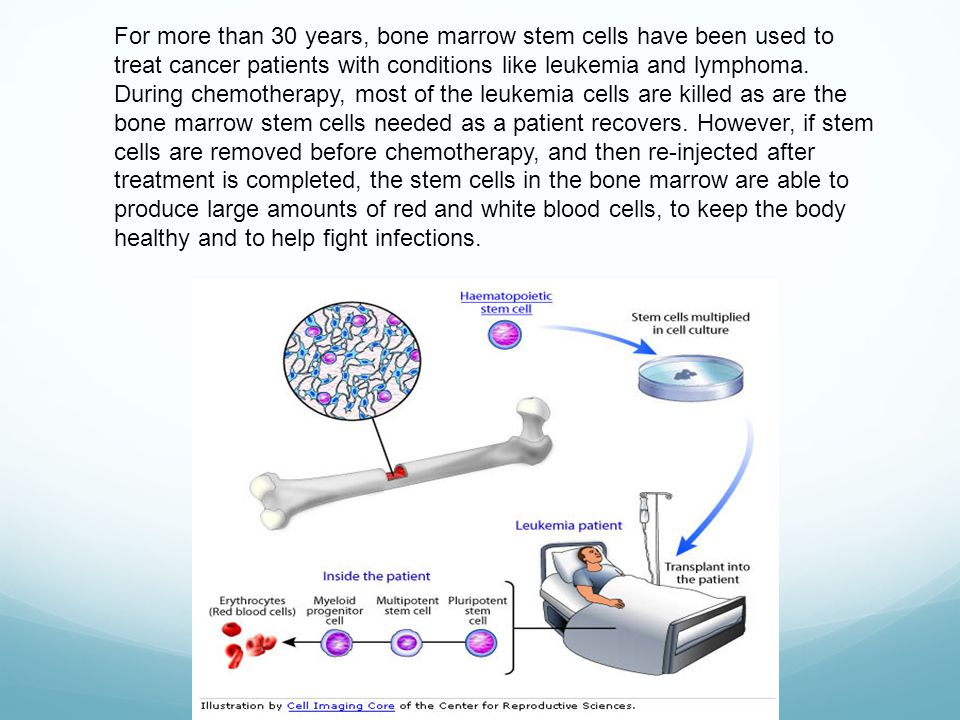 For more than 30 years, bone marrow stem cells have been used to treat cancer patients with conditions like leukemia and lymphoma.